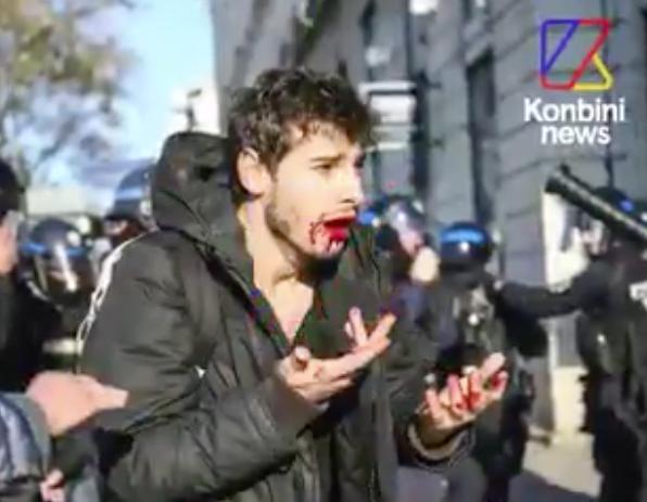 VIOLENCE ET BRUTALITÉ POLICIÈRE – À Lyon, le jeune Arthur est tabassé par la police, il perd 9 dents !